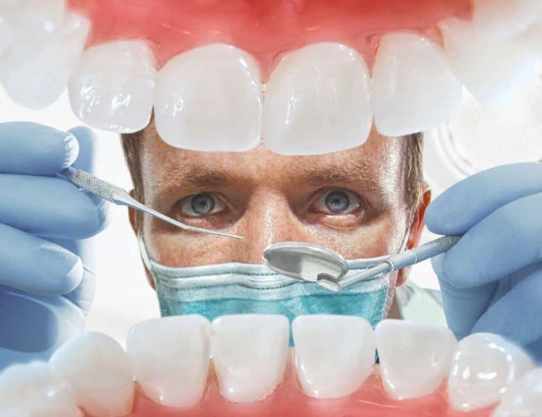 Diş Kaplama İşlemi Nedir?